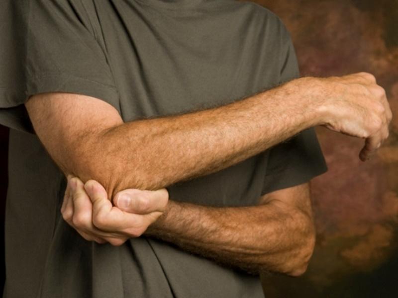 Artritis reumatoide: Síntomas, causas y tratamiento
