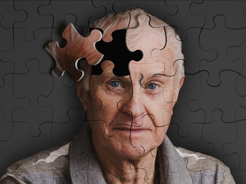 El riesgo de desarrollar Alzhéimer aumenta con la sensación de soledad